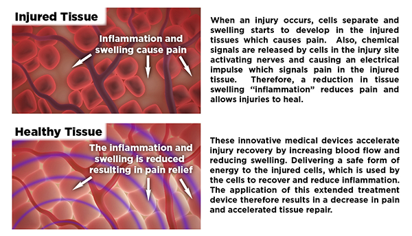 RecoveryRx Pain Relief Medical Device Clinical Effects