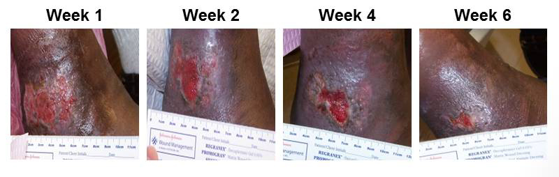 Natural Treatment For Venous Ulcers