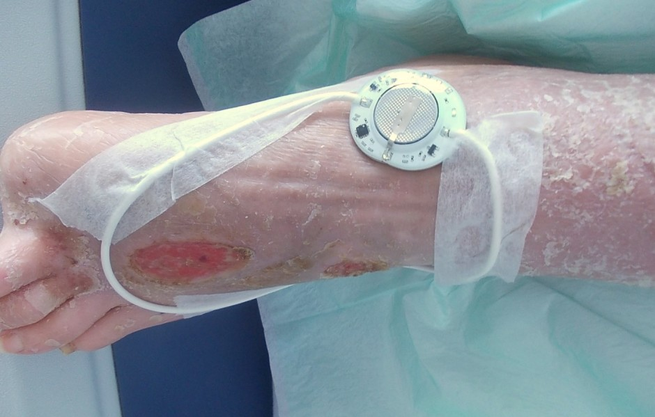 RecoveryRx Patient with Peripheral Arterial Disease (PAD) - lack of blood flow to the extremities